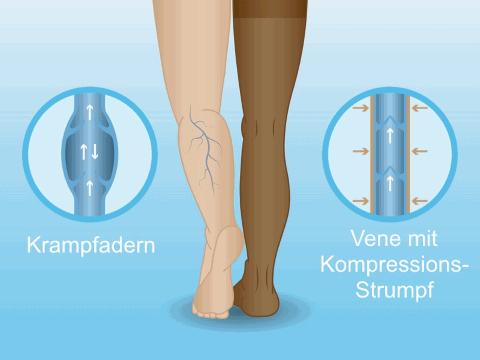 Venenerkrankungen, die eine Venenoperation erfordern